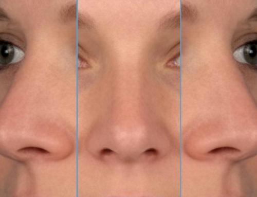 Ik wil een kleinere neus.