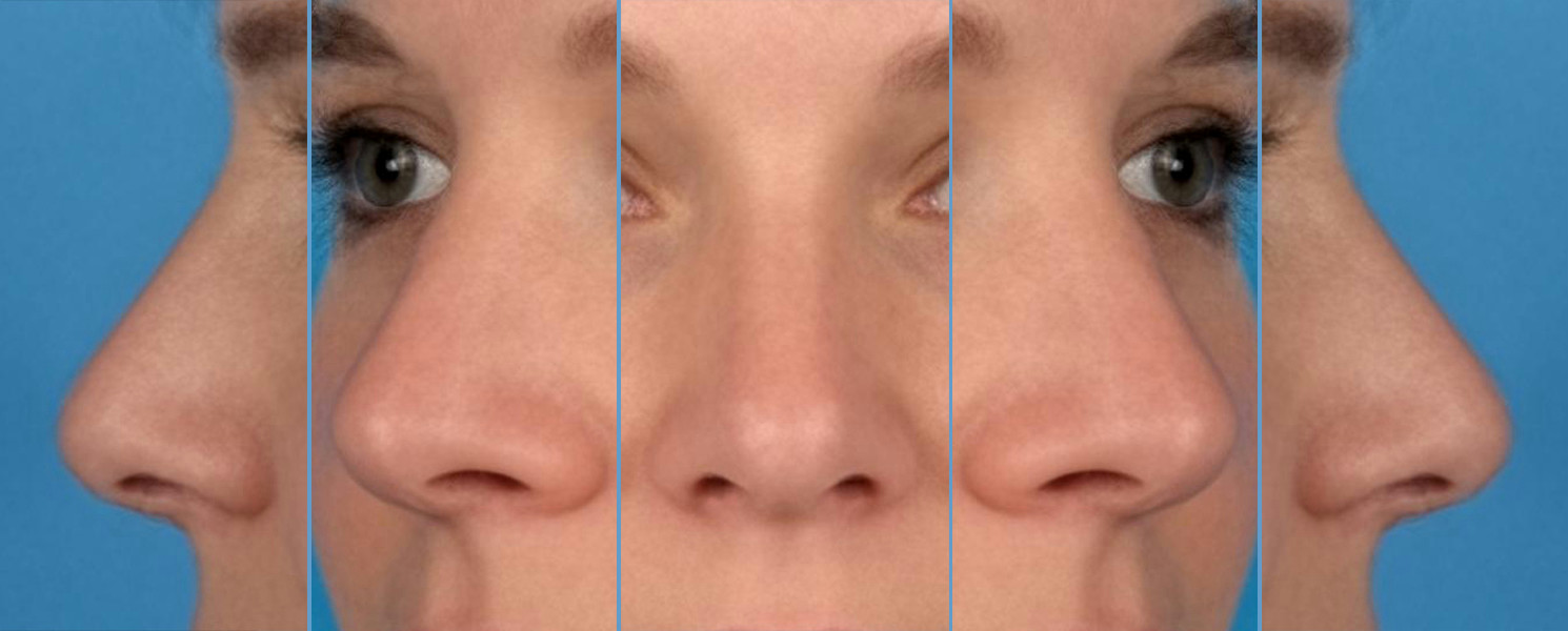 perfecte neus