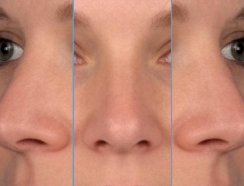 Overweegt u een neuscorrectie? – Recent onderzoek toont aan dat mensen van een gemiddelde neus houden