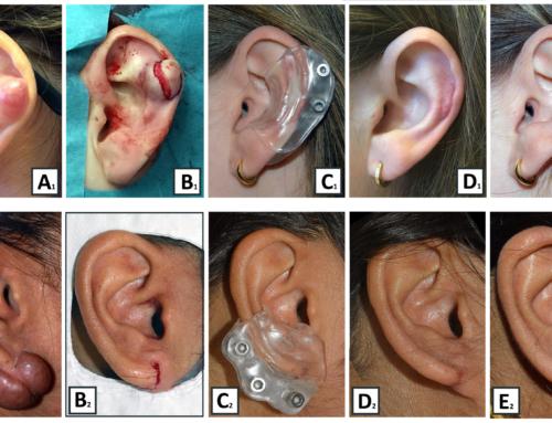 Voorkom bestraling bij keloïd van de oorschelp door triple therapie